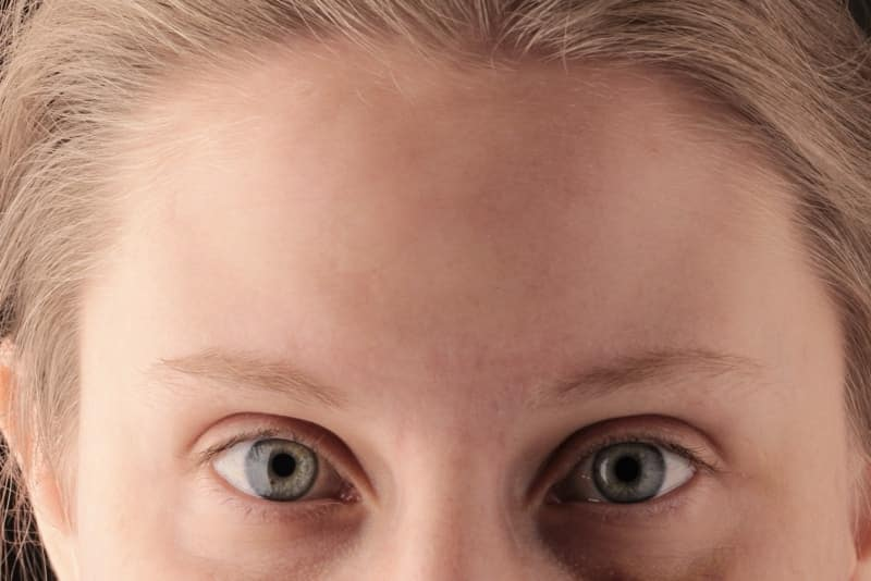 After 2 Anti wrinkle