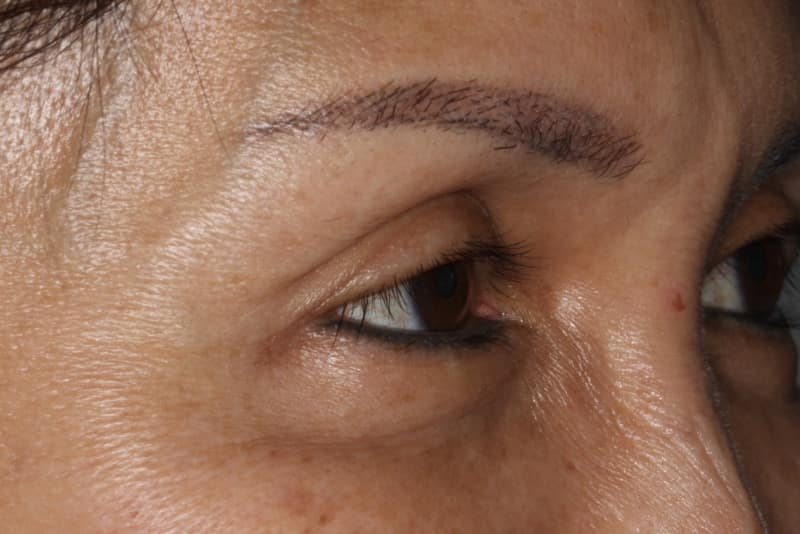 After 3 Anti wrinkle
