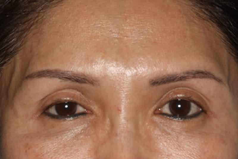 After 4 Anti wrinkle