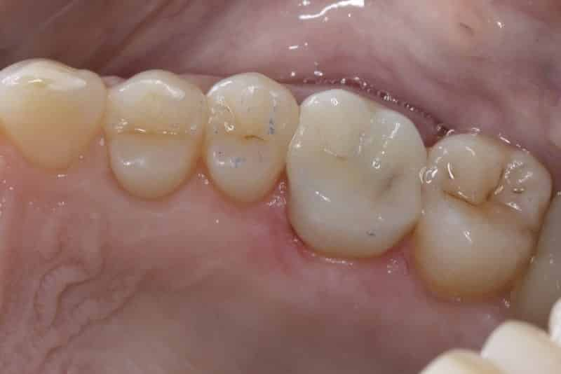 After Dental crown last slide