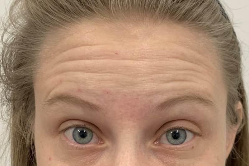 Before 2 Anti wrinkle