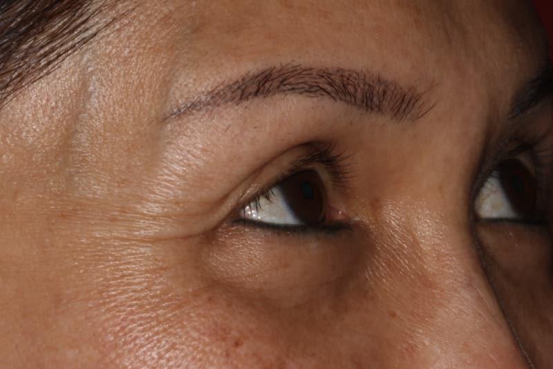 Before 3 Anti wrinkle