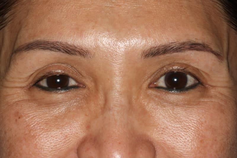 Before 4 Anti wrinkle