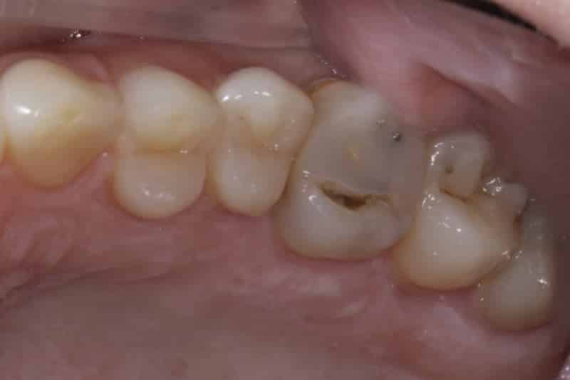 Before Dental crown last slide
