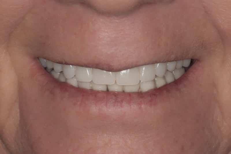 Slider 2 After Denture