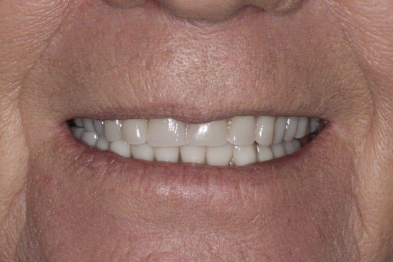 Slider 2 before Denture