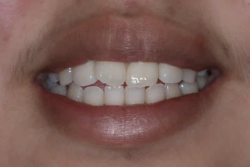Orthodontics-Before-Slide-2.jpeg