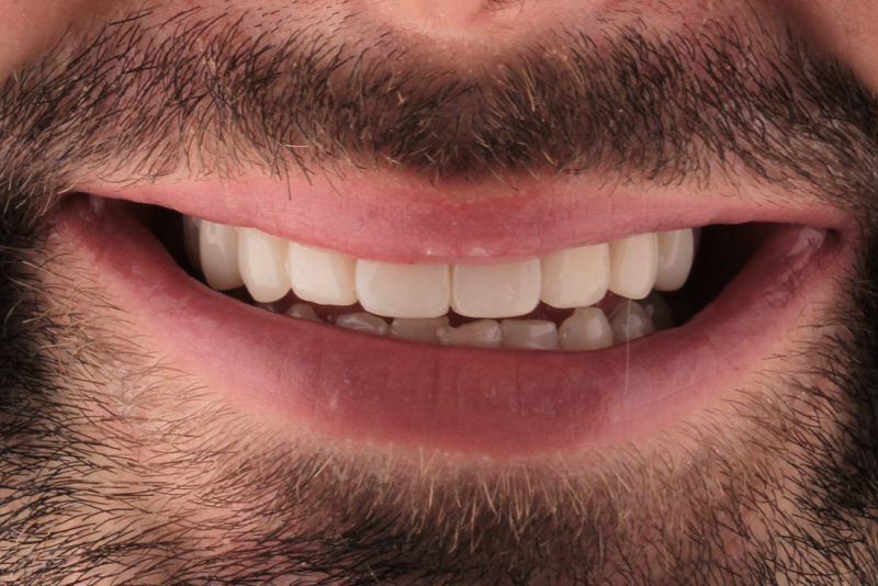 Composite Veneers Doncaster Hill Dental After 10