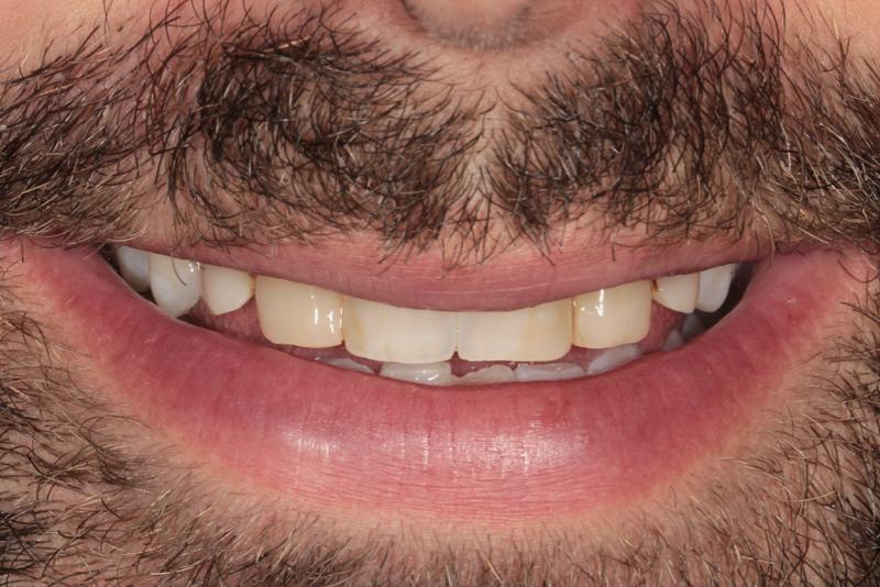 Composite Veneers Doncaster Hill Dental Before 10