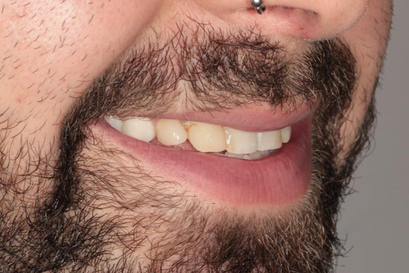 Composite Veneers Doncaster Hill Dental Before 11