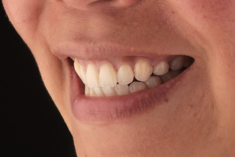 Orthodontics _ Invisalign Doncaster Hill Dental After 5
