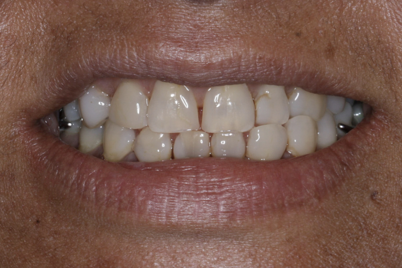 Orthodontics _ Invisalign Doncaster Hill Dental Before 1
