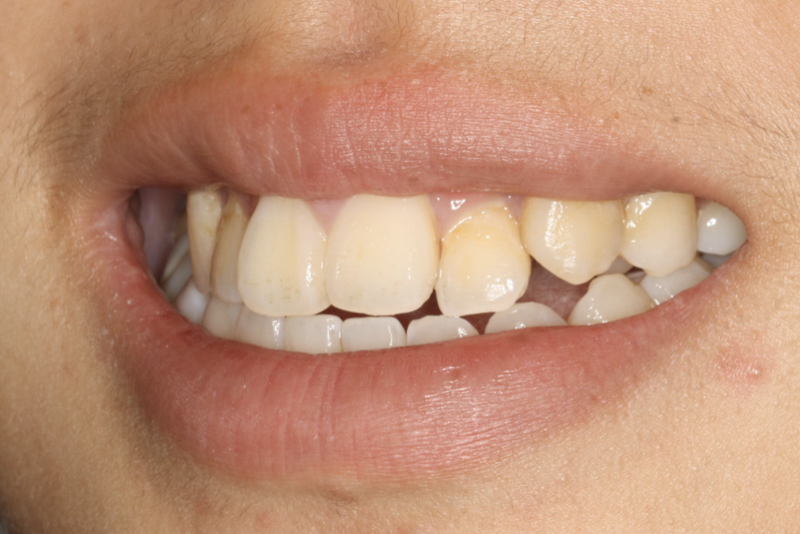 Orthodontics _ Invisalign Doncaster Hill Dental Before 2