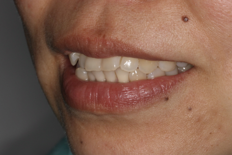 Orthodontics _ Invisalign Doncaster Hill Dental Before 5