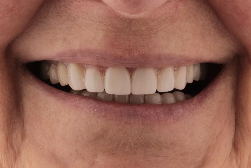 Porcelain Veneers Doncaster Hill Dental After 2