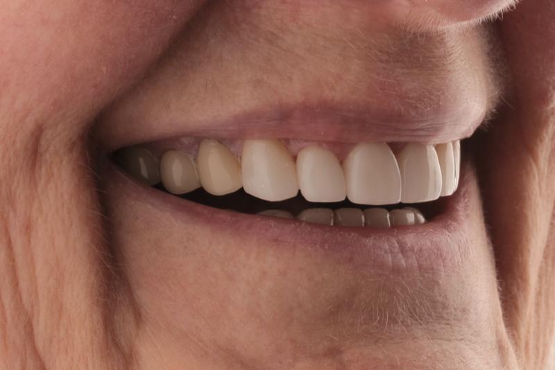 Porcelain Veneers Doncaster Hill Dental After 3