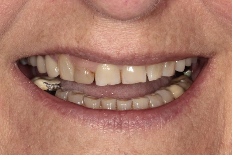Porcelain Veneers Doncaster Hill Dental Before 2