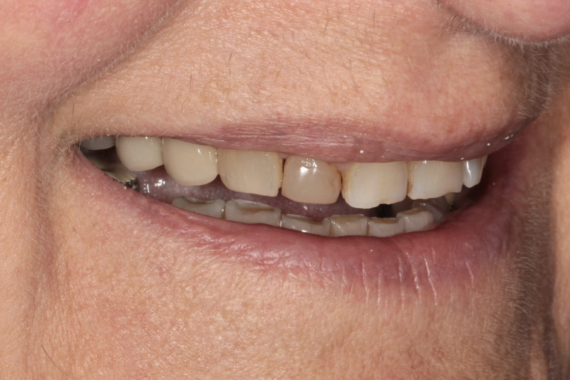 Porcelain Veneers Doncaster Hill Dental Before 3