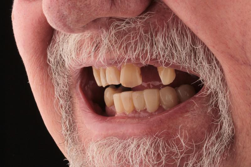 Porcelain Veneers _ Bridges Doncaster Hill Dental Before 5