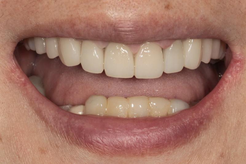 Porcelain Veneers _ Crowns _ Bridges Doncaster Hill Dental After 8