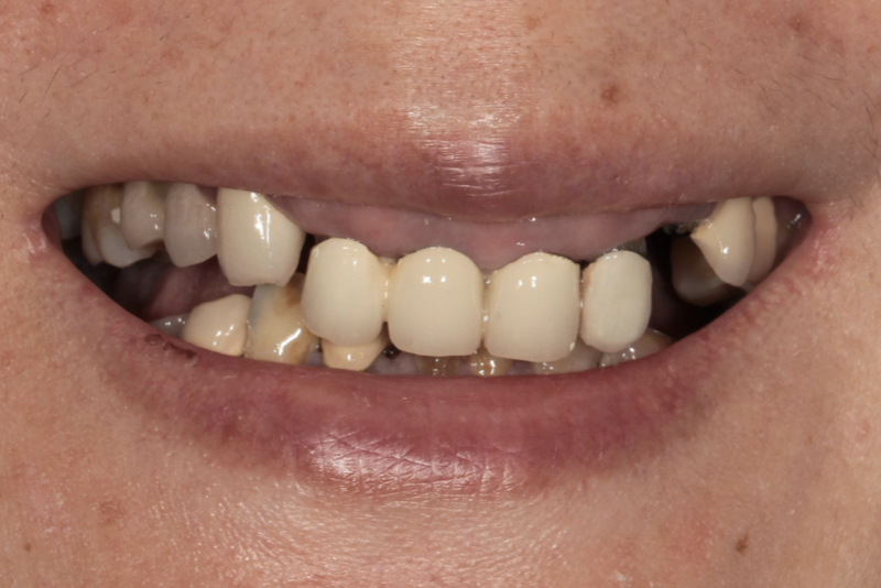 Porcelain Veneers _ Crowns _ Bridges Doncaster Hill Dental Before 8