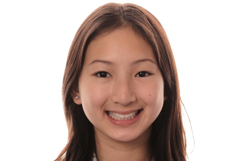 Orthodontics _ Invisalign Dr Lavonne Kong After 1