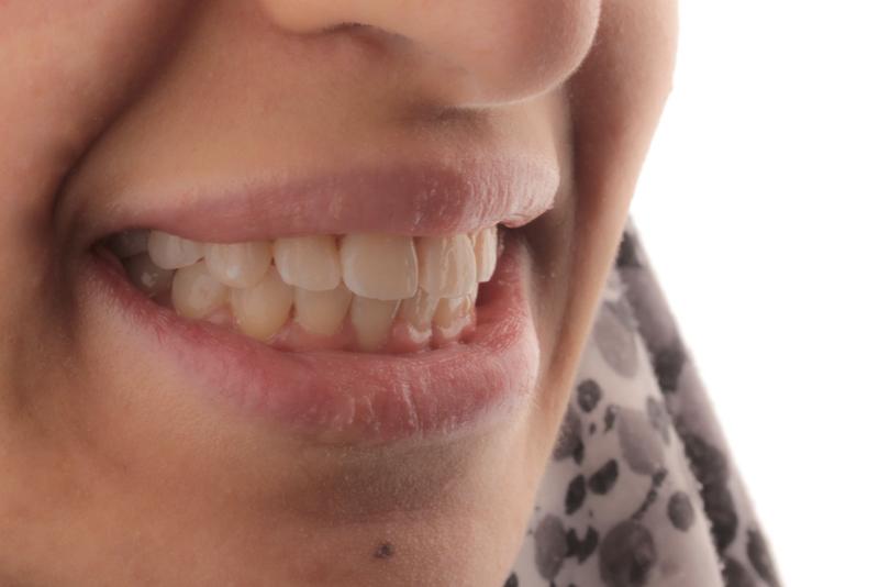 Orthodontics _ Invisalign Dr Lavonne Kong After 11