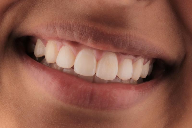 Orthodontics _ Invisalign Dr Lavonne Kong After 5