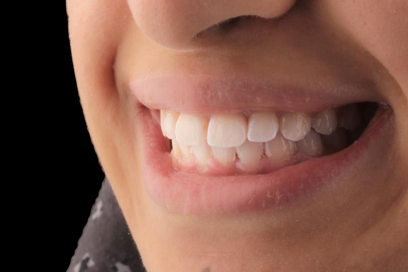Orthodontics _ Invisalign Dr Lavonne Kong After 9