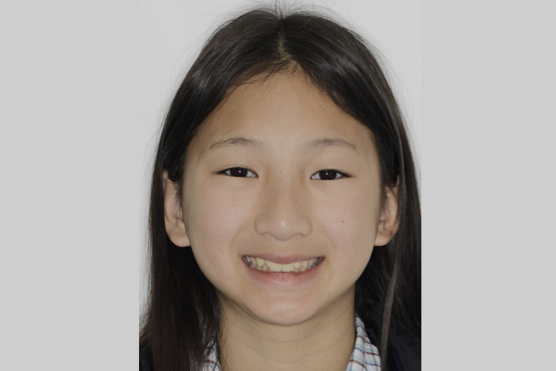 Orthodontics _ Invisalign Dr Lavonne Kong Before 1