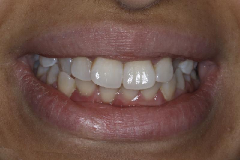 Orthodontics _ Invisalign Dr Lavonne Kong Before 10
