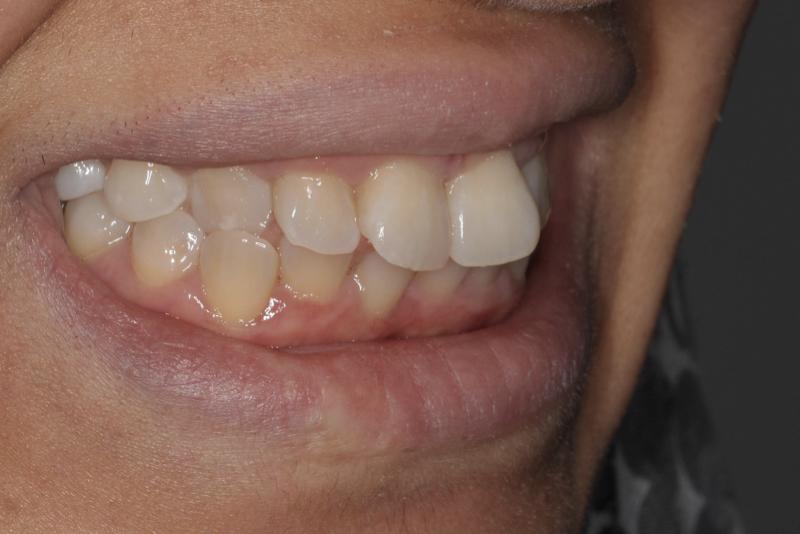 Orthodontics _ Invisalign Dr Lavonne Kong Before 11