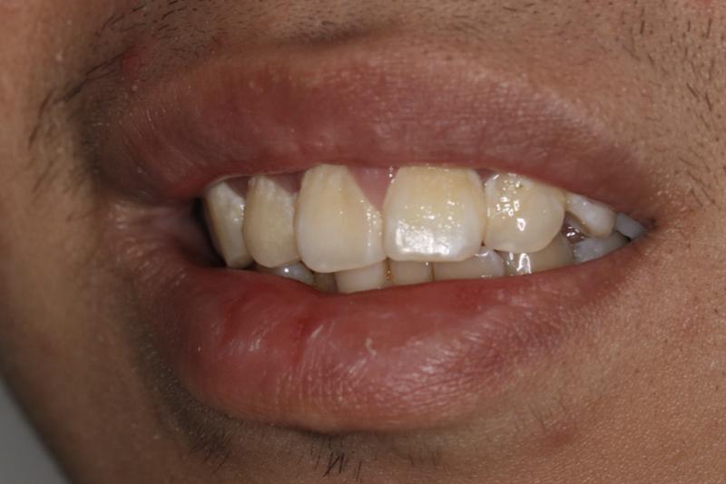 Orthodontics _ Invisalign Dr Lavonne Kong Before 4