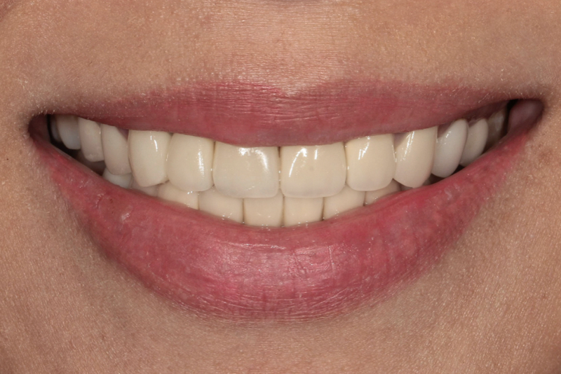 Tooth Coloured fillings Dr Lavonne Kong After 1